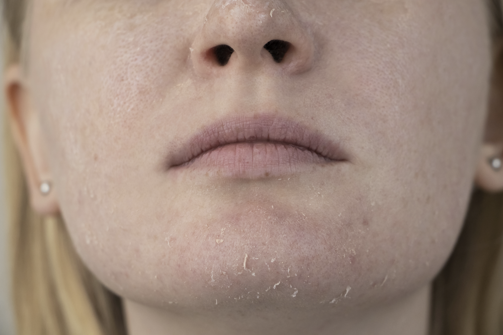 how to hydrate skin: woman with dry skin